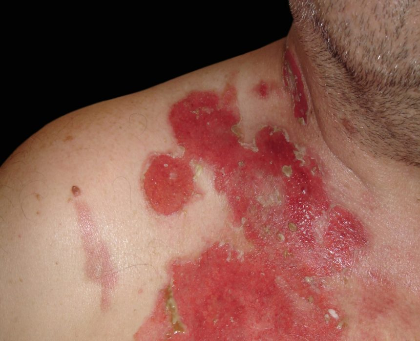 Pemphigus is a group of autoimmune diseases that result in mucosal and skin blistering. There are 6 general types: pemphigus vulgaris, pemphigus foliaceus, pemphigus vegetans, pemphigus erythematosus, paraneoplastic pemphigus, and immunoglobulin A pemphigus.19 The most common is pemphigus vulgaris, which has mucosal involvement with or without skin involvement. The most serious is paraneoplastic pemphigus, which typically affects people with cancer.20 This variant may include extensive intractable stomatitis and variable skin findings.6 Because presentations vary significantly among subtypes, pemphigus can easily be confused with other autoimmune blistering skin diseases such as bullous lupus, making bloodwork and biopsy essential for diagnosis.20,21 Treatment includes oral steroids, immunosuppressive agents, and antibiotics if there is infection.21 Good oral and wound care are essential.6 Tense blisters can be popped with a sterile needle to prevent traumatic deroofing.6