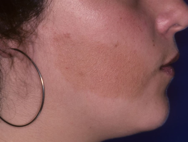 These autosomal dominant disorders are characterized by benign or malignant neoplasms of multiple endocrine tissues. Dermatologic manifestations of MEN1, angiofibromas (observed in 88% of patients10), lipomas, café-au-lait spots, collagenomas, and necrolytic migratory erythema. In MEN2A, lichen amyloidosis is the most significant cutaneous feature. In MEN2B, cutaneous features may include mucosal neuromas, most commonly on the eyelids, conjunctiva, lips, and tongue, as well as café-au-lait macules. Although treatment of MEN syndromes varies by case, surgical excision may be used for benign skin tumors, topical rapamycin and laser therapy may reduce the number and size of angiofibromas, and case reports suggest that corticosteroids, retinoids, phototherapy, and laser therapy may be effective in treating lichen amyloidosis.11