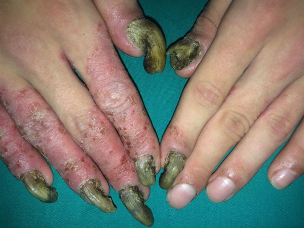 These immune-mediated disorders are defined by inadequate function of at least 2 endocrine organs. Dermatologic manifestations include chronic mucocutaneous candidiasis, alopecia areata, and vitiligo, as well as dry, scaly, hyperkeratotic skin and brittle nails. Along with treatment addressing the endocrine abnormalities of APS, antifungal agents, such as azoles and amphotericin, are used to treat the cutaneous features of APS.