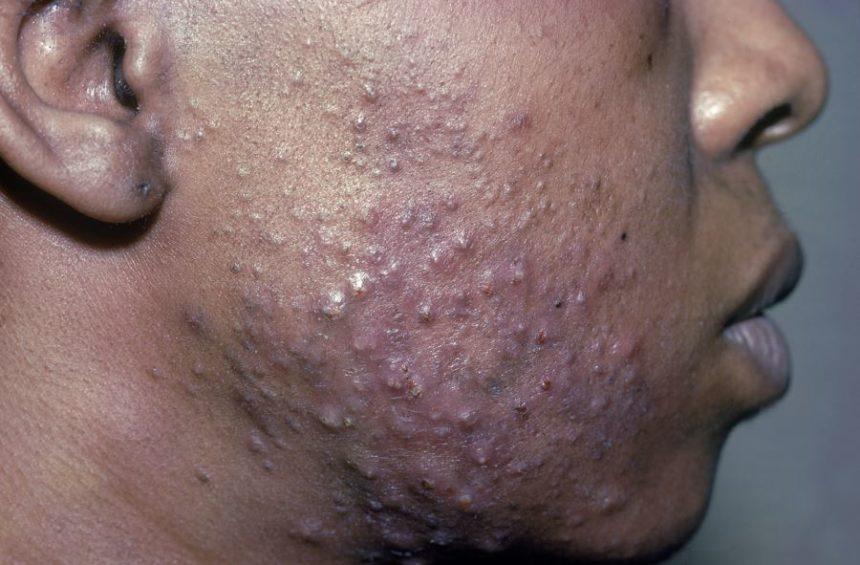 Acne on dark skin