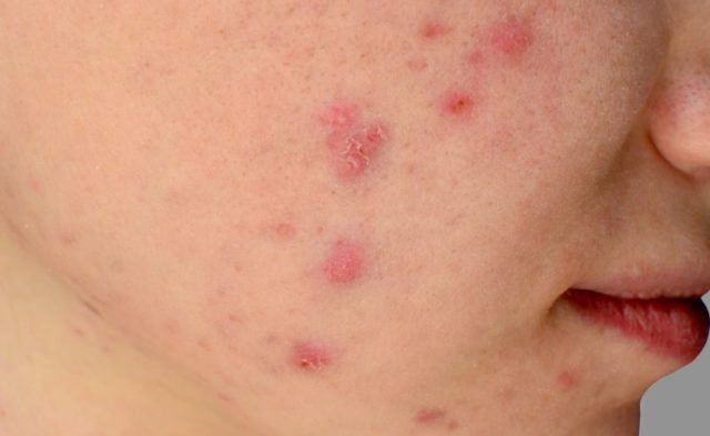 Acne on a person's face