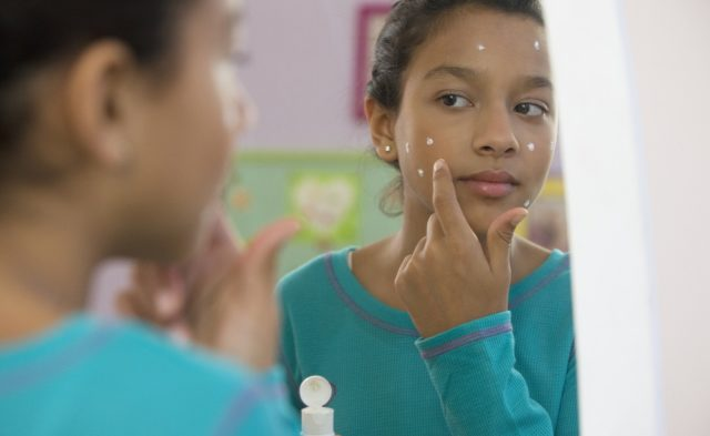 girl with acne cream