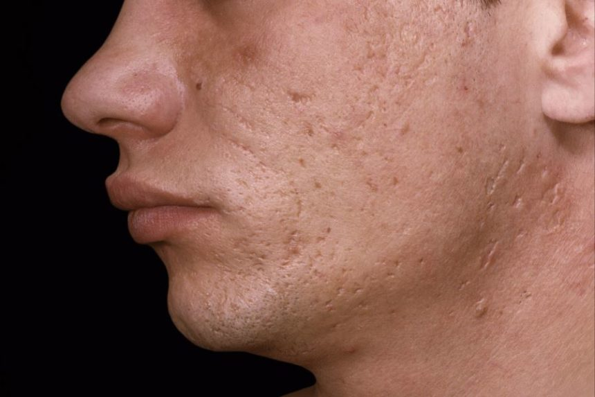 Acne scarring on the face