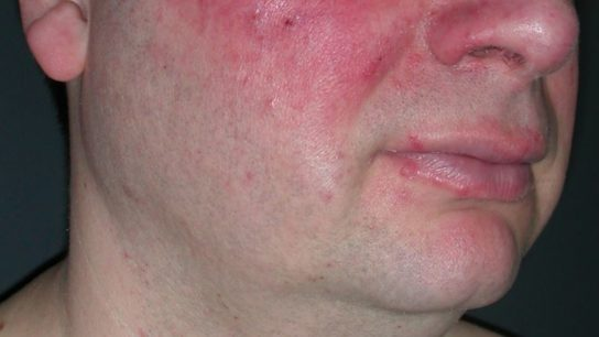 Acne rosacea of the face in a male patient.