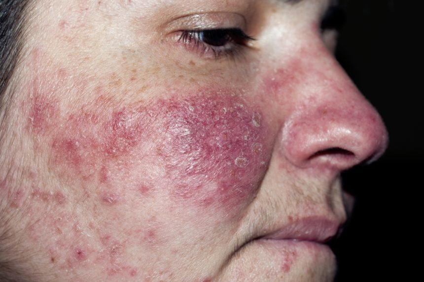 Patch Testing Beneficial in Rosacea to Detect Contact Sensitivity -  Dermatology Advisor