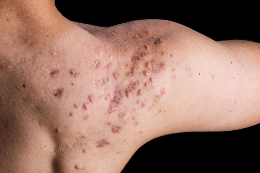 Acne Scars Reduced, Prevented With Topical Adapalene/Benzoyl