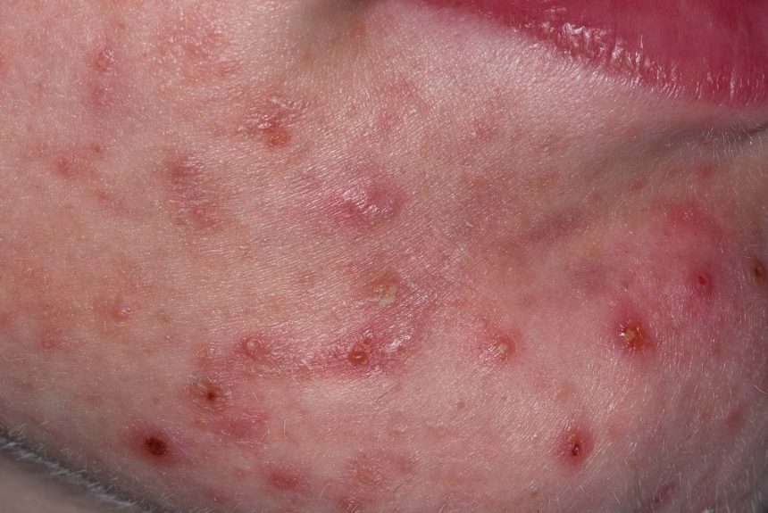 Acne vulgaris on chin
