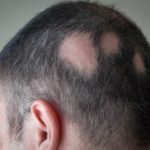 A man with alopecia