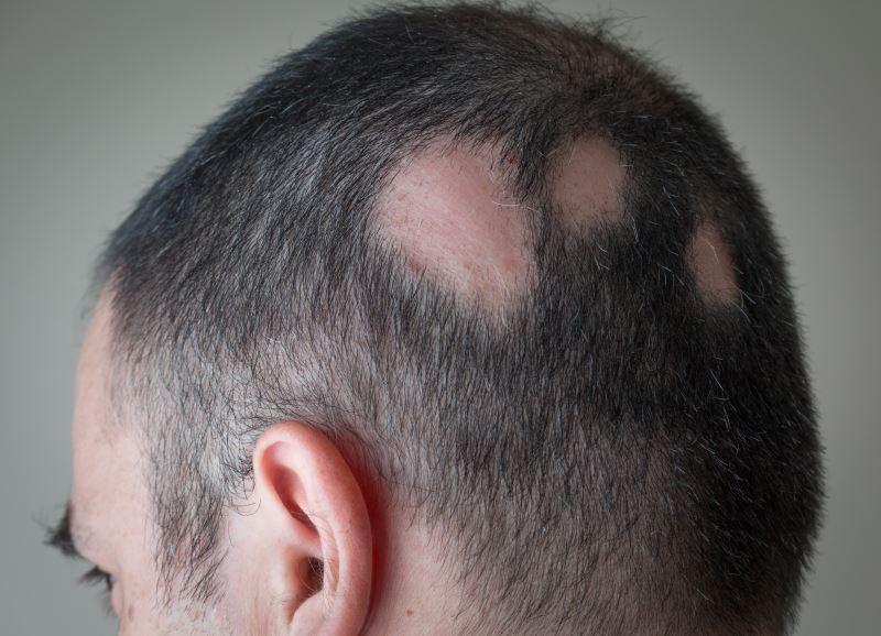 A man with alopecia