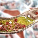 Atheromatous plaque in artery