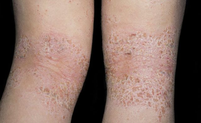 Close-up of atopic dermatitis on the back of the knee