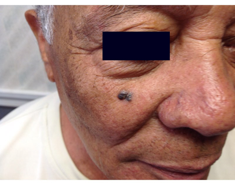 An 80-year-old Hispanic man presents for evaluation of a lesion affecting the right side of his face.