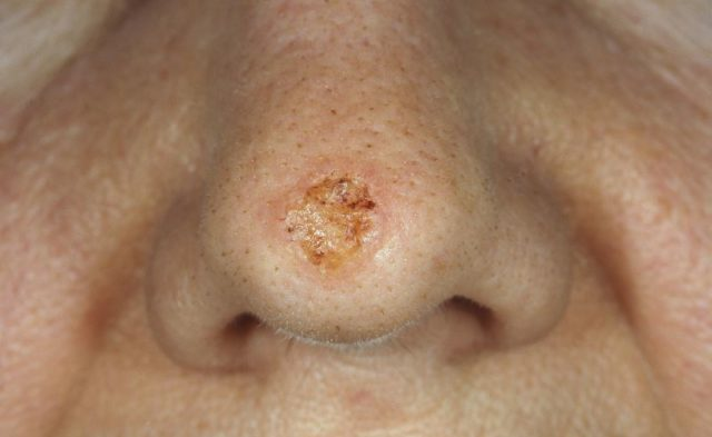 Close-up of basal cell carcinoma, a nonmelanoma type of skincancer