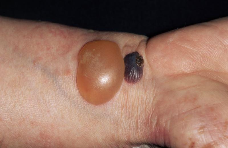 Bullous pemphigoid blisters