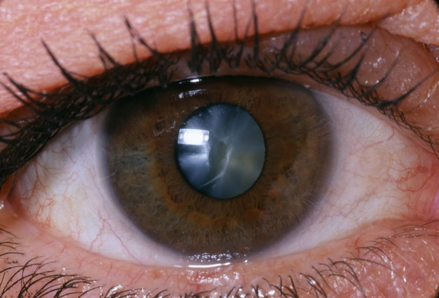 Eye, Cataract