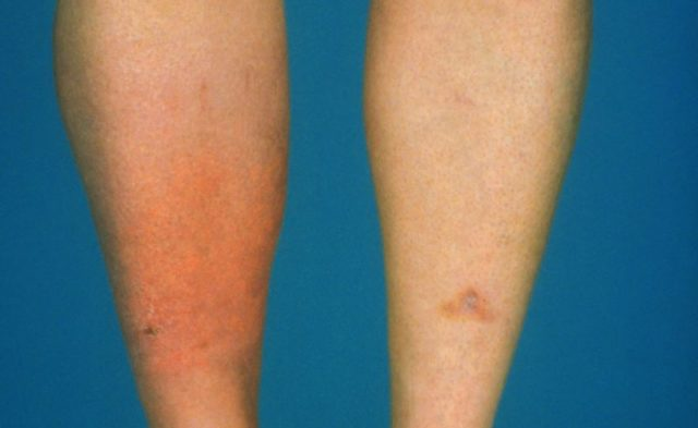 A close-up image of cellulitis on a man's shins