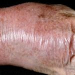 Cellulitis of the wrist