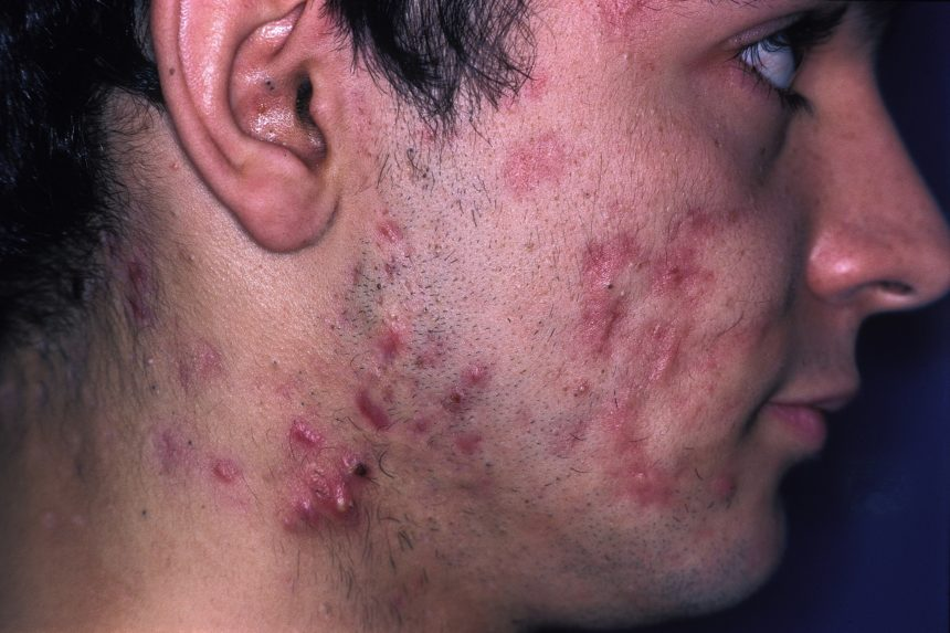 cystic acne on the face