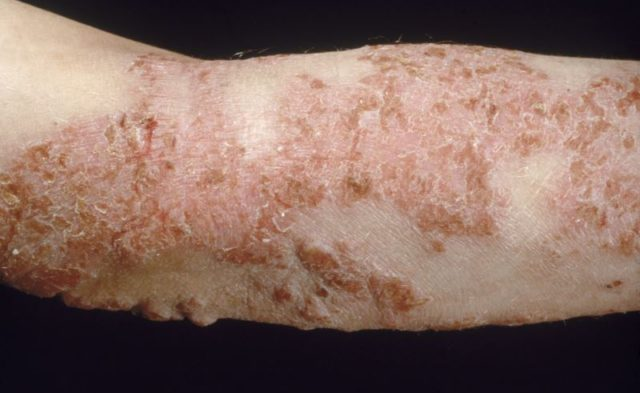 Atopic dermatitis on arm
