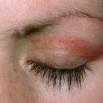 Dermatomyositis, eyelid