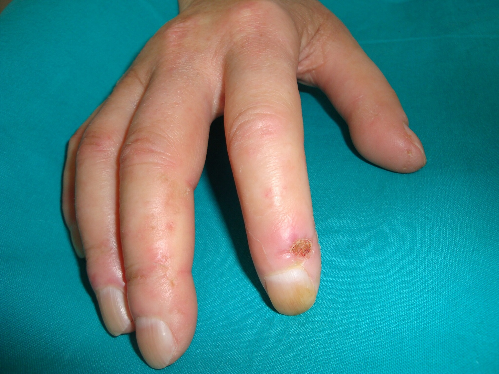 Isotretinoin May Increase Risk of Hyperhomocysteinemia and