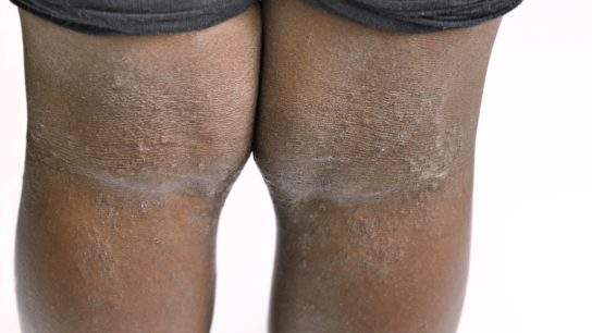 Eczema behind the knees
