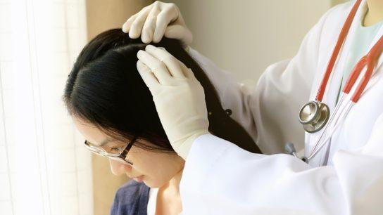 examining scalp