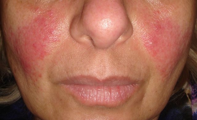 acne rosacea on face