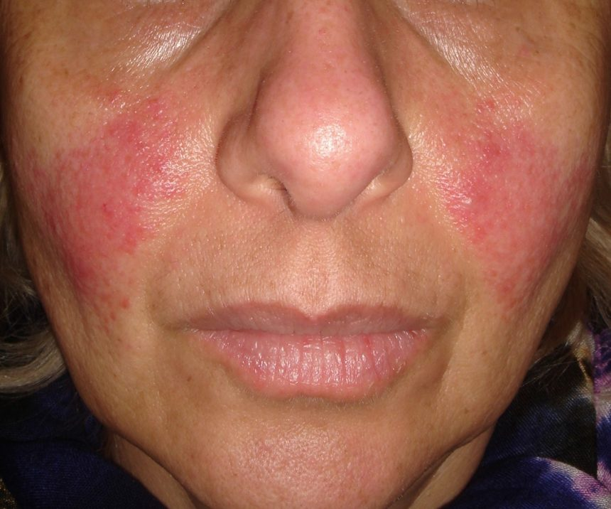 acne rosacea on face