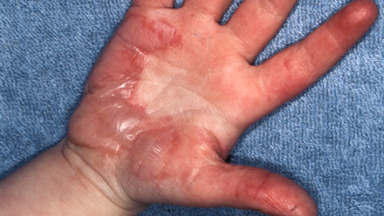 Second-degree burns (shown here) form blisters and have associated skin sloughing.