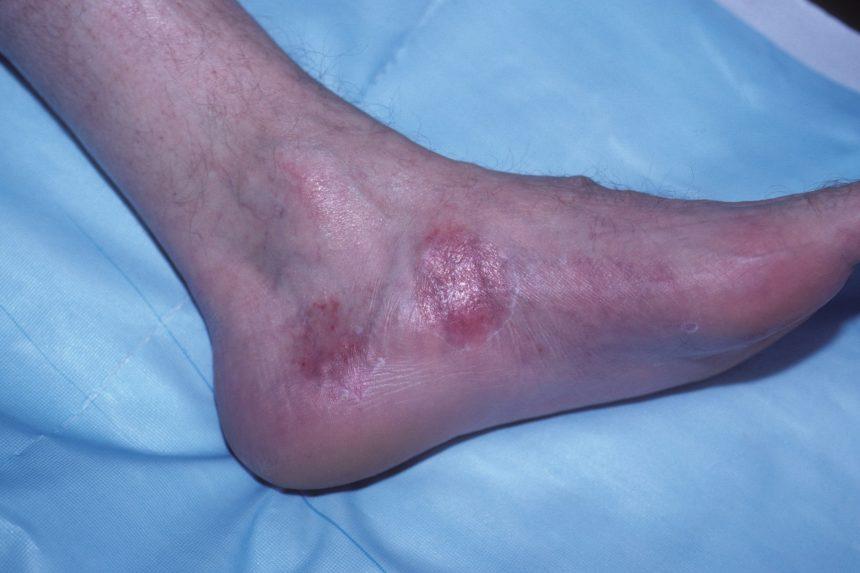 foot, psoriasis, psoriatic arthritis, psa