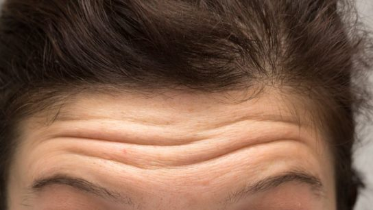 A wrinkled forehead