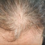 Thinning hair on a woman's scalp