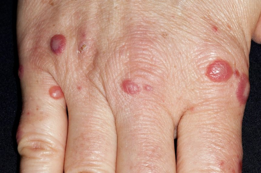Hand foot mouth disease on hand