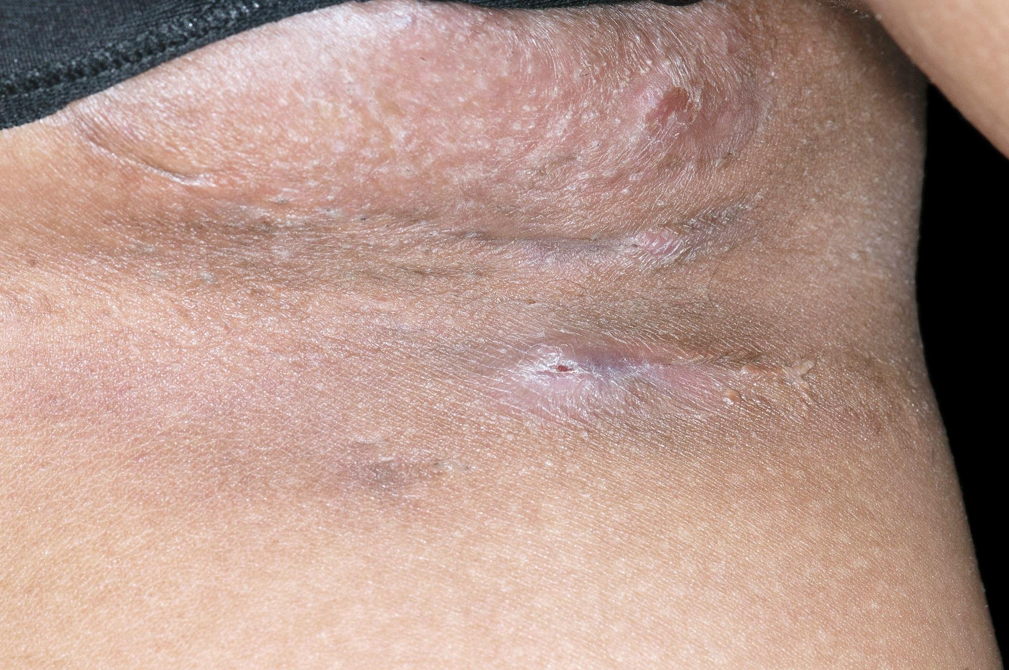 How I Treat Hidradenitis Suppurativa Dermatology Advisor