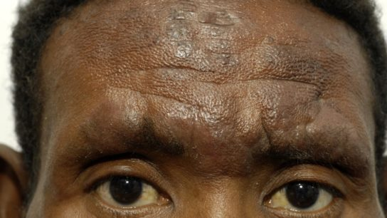 hyperpigmentation acne