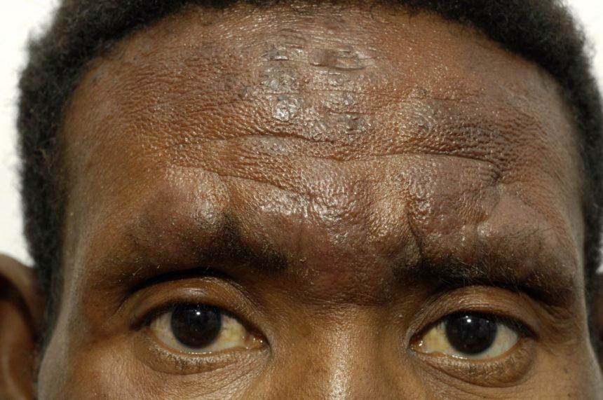 hyperpigmentation acne