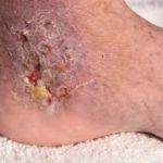 A skin infection on a patient's foot