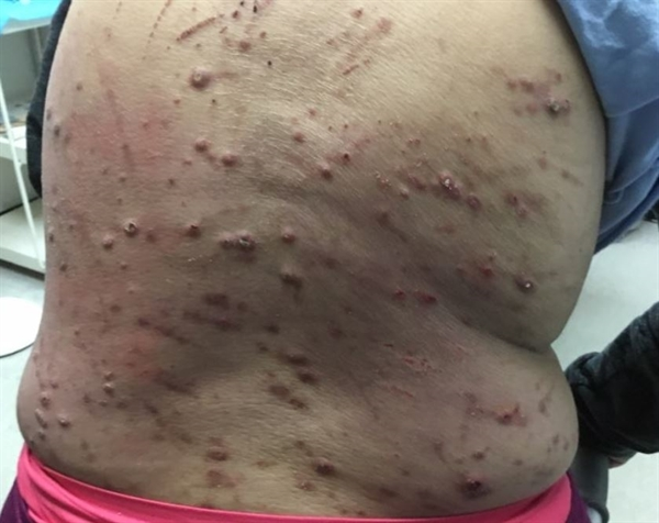 Clinical Challenge Pruritic Dermatitis In Patient With Renal Failure Dermatology Advisor