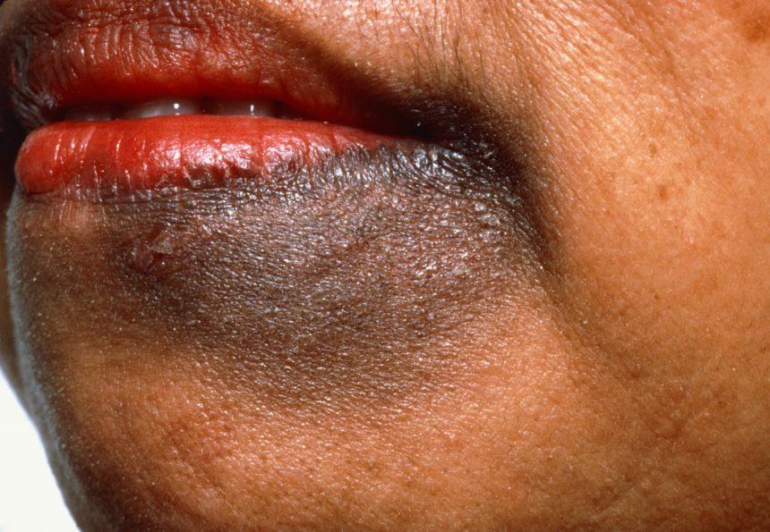 liver spot near mouth