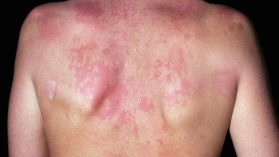 Subacute cutaneous lupus erythematosus