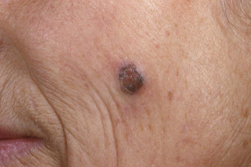 Melanoma on the cheek