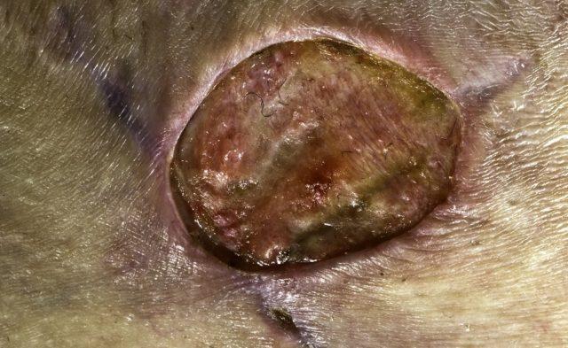 MRSA skin infection