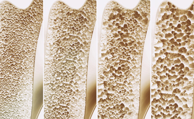 Osteoporosis 4 stages