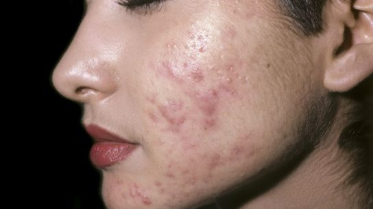 Papulopustular acne (acne with papules and pustules) on the face of a female.
