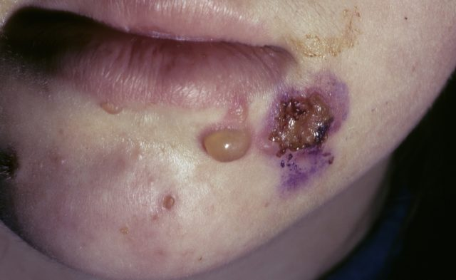 Pemphigus, mouth