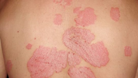 An example of plaque psoriasis on a patient's back