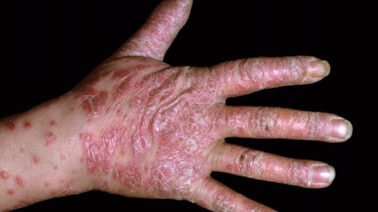 Plaque psoriasis on the hand