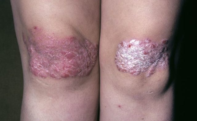 Psoriasis on knees