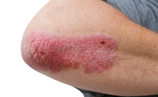 psoriasis on a mid age mans elbow